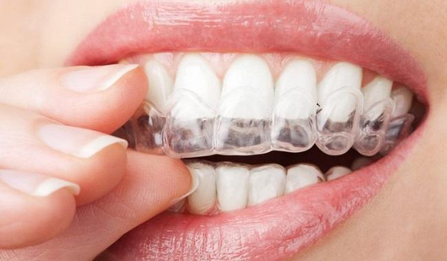 Niếng răng tại Nha Khoa Hanh Lan