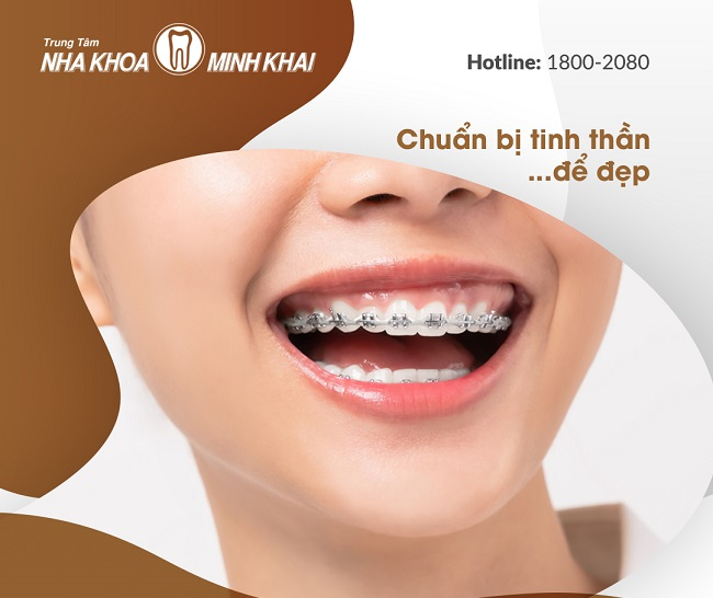 Niềng răng tại Nha Khoa Minh Khai