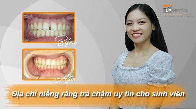Up Dental